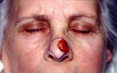 Nasal defect after Mohs surgery. The boundaries of