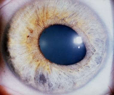 Iris atrophy in a patient with herpes simplex viru