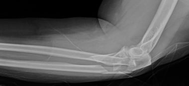 Monteggia-variant fracture of the proximal ulna an