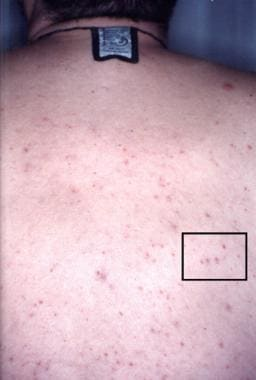 Eruptive xanthomas on the back of a patient admitt