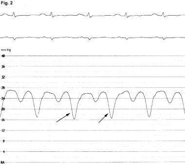 Right atrial pressure tracing showing marked y des