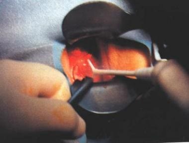 Loop electrosurgical excision procedure.
