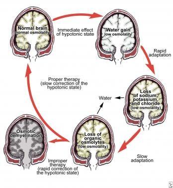 Brain Damage Treatment
