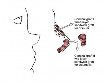 Conchal cartilage can be used as layered or sandwi