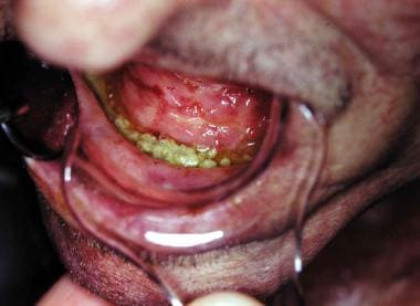 This patient developed ORN following tooth extract