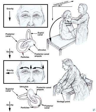 Posttraumatic vertigo. The Dix-Hallpike maneuver.