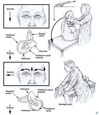Posttraumatic Vertigo: Background, Pathophysiology, Epidemiology