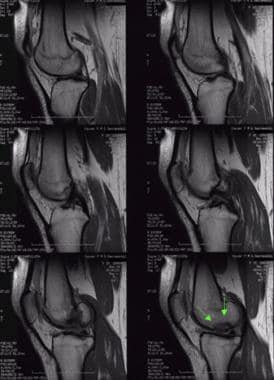 Lateral MRI of osteochondritis dissecans.