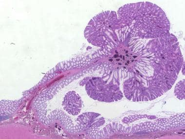 Pedunculated tubular adenoma. Note the contrast be