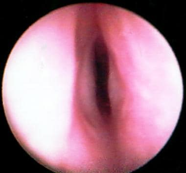 Preoperative endoscopic subglottic view of a 2-yea
