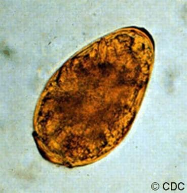 This micrograph depicts an egg from the trematode