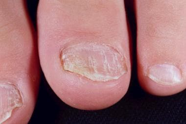 Nail Psoriasis: Overview of Nail Psoriasis, Pathophysiology of Nail ...