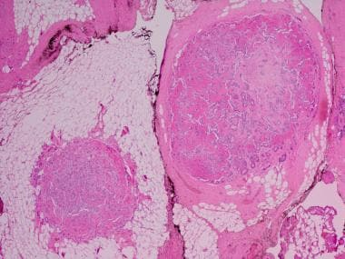 Recurrence of pleomorphic adenoma. Image shows rec