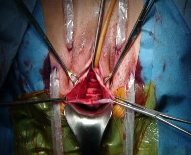 Cystocele repair using kit and trocars (Perigee).