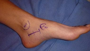 Location of medial foot incision from just below t