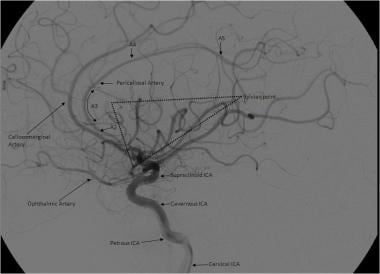 Lateral view of a cerebral angiogram illustrates t