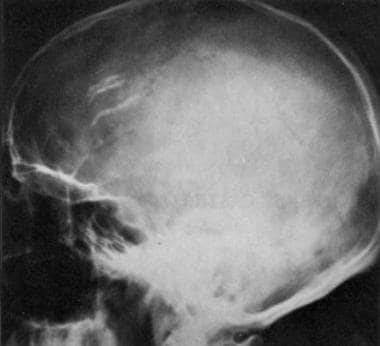Lateral radiograph of the skull in a 44-year-old m