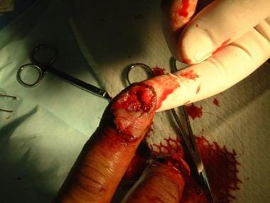Nail Bed Laceration Repair Overview Indications