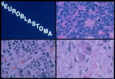 Histologic subtypes of neuroblastoma. Top right pa