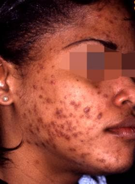 Acne with reactive hyperpigmentation; before treat