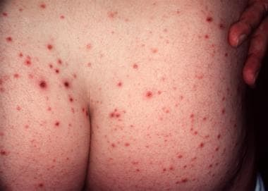 Typical hemorrhagic crusted papules of pityriasis