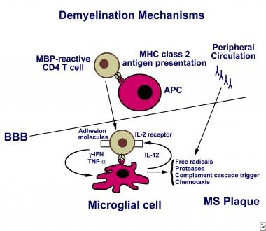 The mechanism of demyelination in multiple scleros