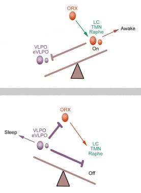 Insomnia: Practice Essentials, Background, Anatomy