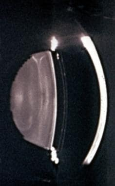 Slit lamp photograph of optical section of the ant