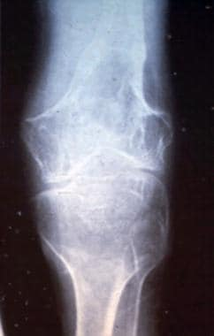 Radiograph of a patient with Gorham disease showin
