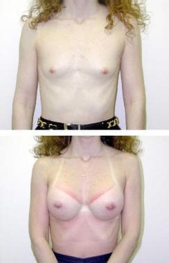 (Above) Preoperative view of 23-year-old patient w
