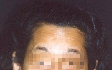Preoperative view of forehead of an ideal patient.