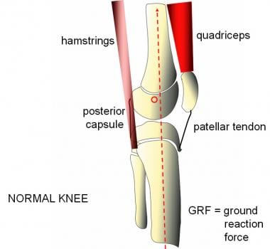 Normal sagittal alignment permits the knee to lock
