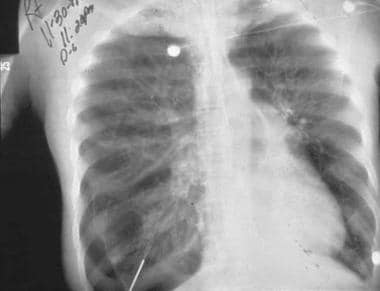 What is the role of chest radiograph in the evaluation of