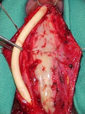 Urethral strictures. The buccal mucosal grafts hav