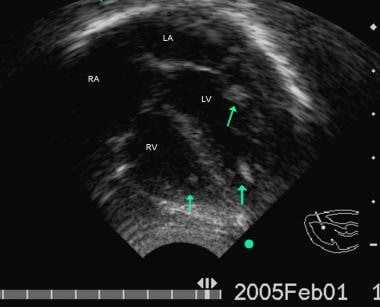 Follow-up echocardiographic 4 chamber view from th