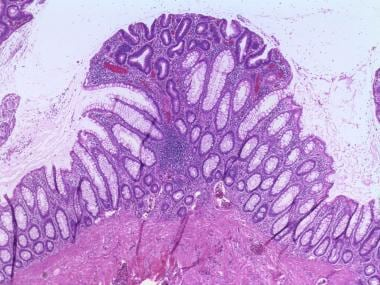 Sessile tubular adenoma. The glands on the superfi