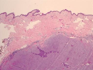 Biopsy of metastatic melanoma reveals a well-circu