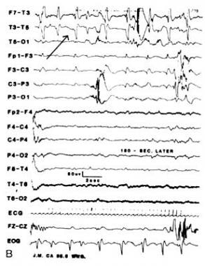 Infant with L focal paroxysmal temporal discharges