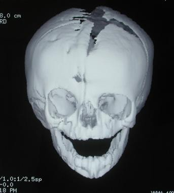 Craniosynostosis management. Child with right unic