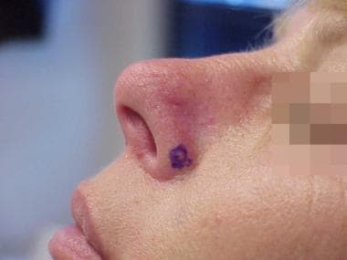 An apparently small recurrent basal cell carcinoma