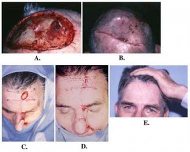 Advancement flaps. A: Mohs defect over the scalp v