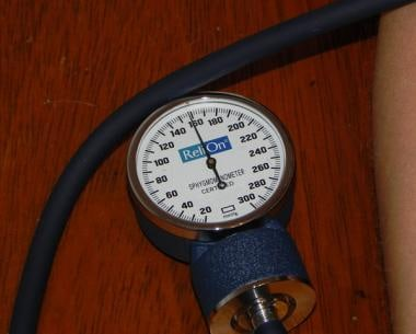 Aneroid sphygmomanometer at level 30 mmHg above th