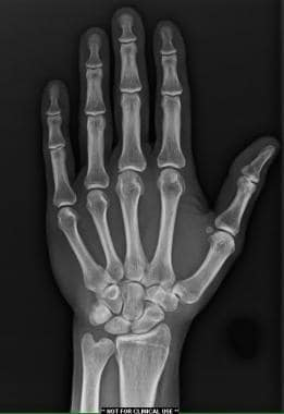 Anterior-posterior radiograph of bones of hand and