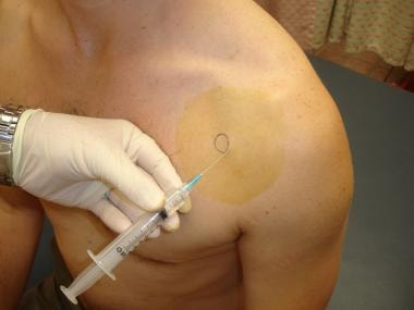 Shoulder arthrocentesis. Insert needle medial to h