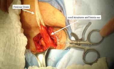 Open inguinal hernia repair. Cord structures and h
