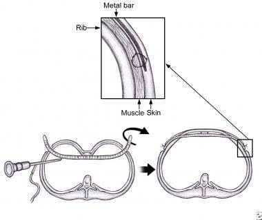Illustration of the pectus bar passed behind the s