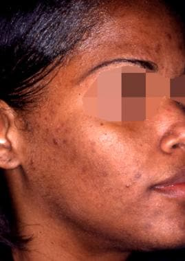 Acne with reactive hyperpigmentation; after treatm
