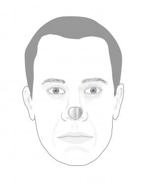 Diagram shows a nasal defect due to tumor removal