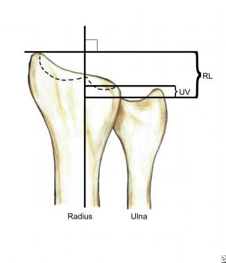 The normal radial length (RL) is 12 mm, and the ul