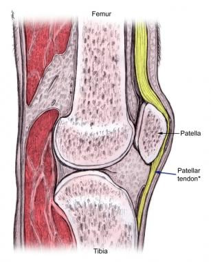 The proximal patellar tendon is most commonly affe
